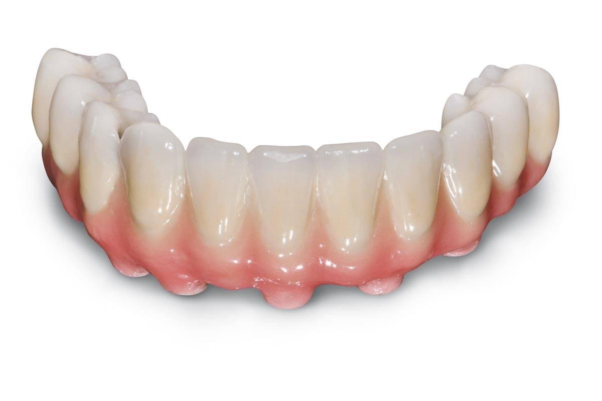 Протезирование зубов: виды протезирования, съёмные и несъёмные протезы