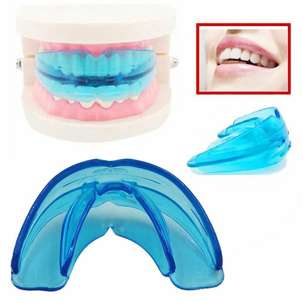 Капы для выравнивания зубов – как пользоваться и сколько носить