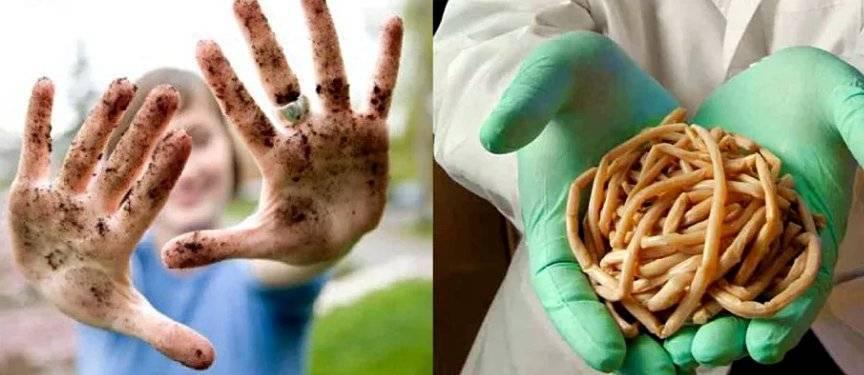 глисты и аллергия у детей