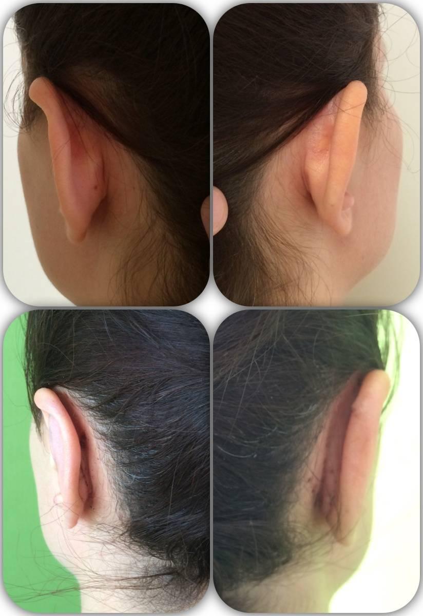 исправление лопоухости без операции