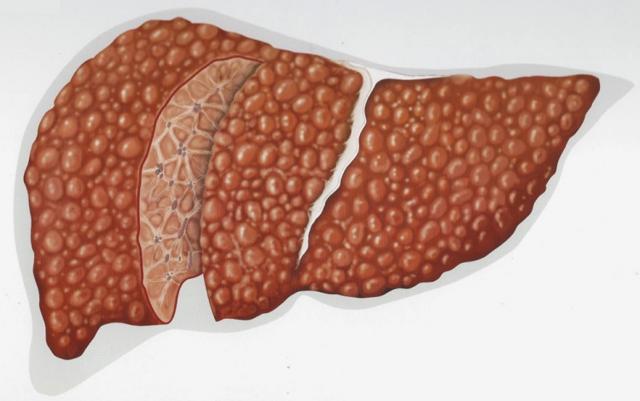 Токсический цирроз печени: проявление и лечение