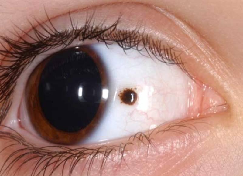 черная точка на белке глаза