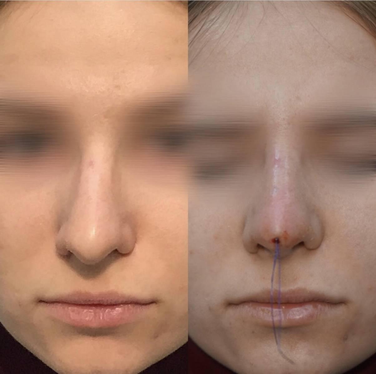 Макияж в помощь: как визуально уменьшить нос