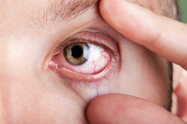 демодекс глаз симптомы