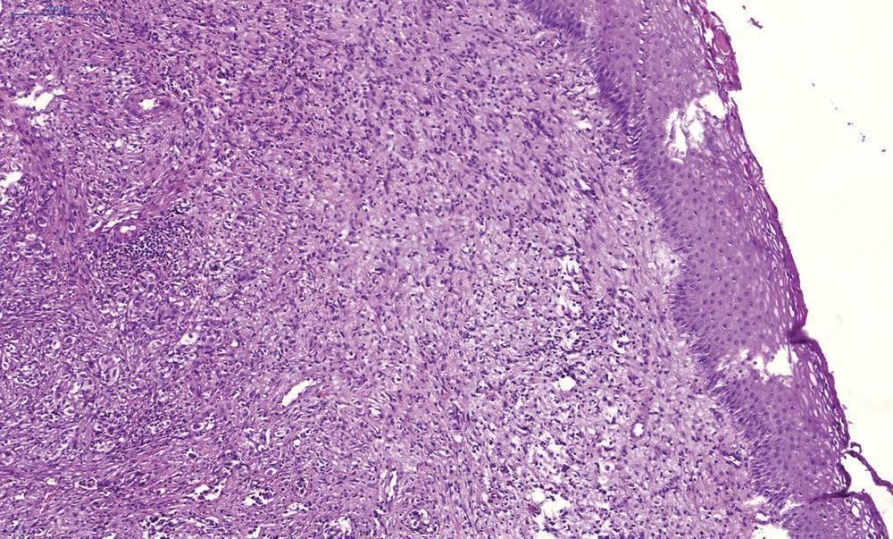 плоскоклеточный рак гортани фото