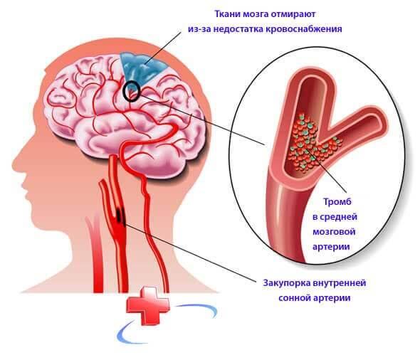 церебральный атеросклероз что это