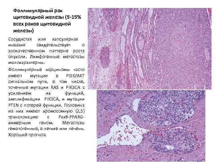 Фолликулярный рак щитовидной железы — не приговор!