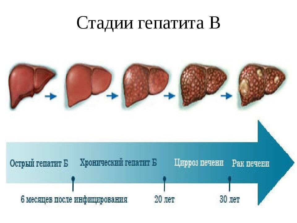 Какова вероятность заражения гепатитом с от мужа? вероятность заражения гепатитом c от мужа.