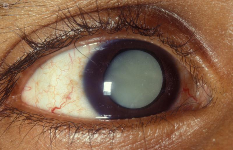 Что такое вторичная глаукома и возможно ли восстановить зрение при таком заболевании?