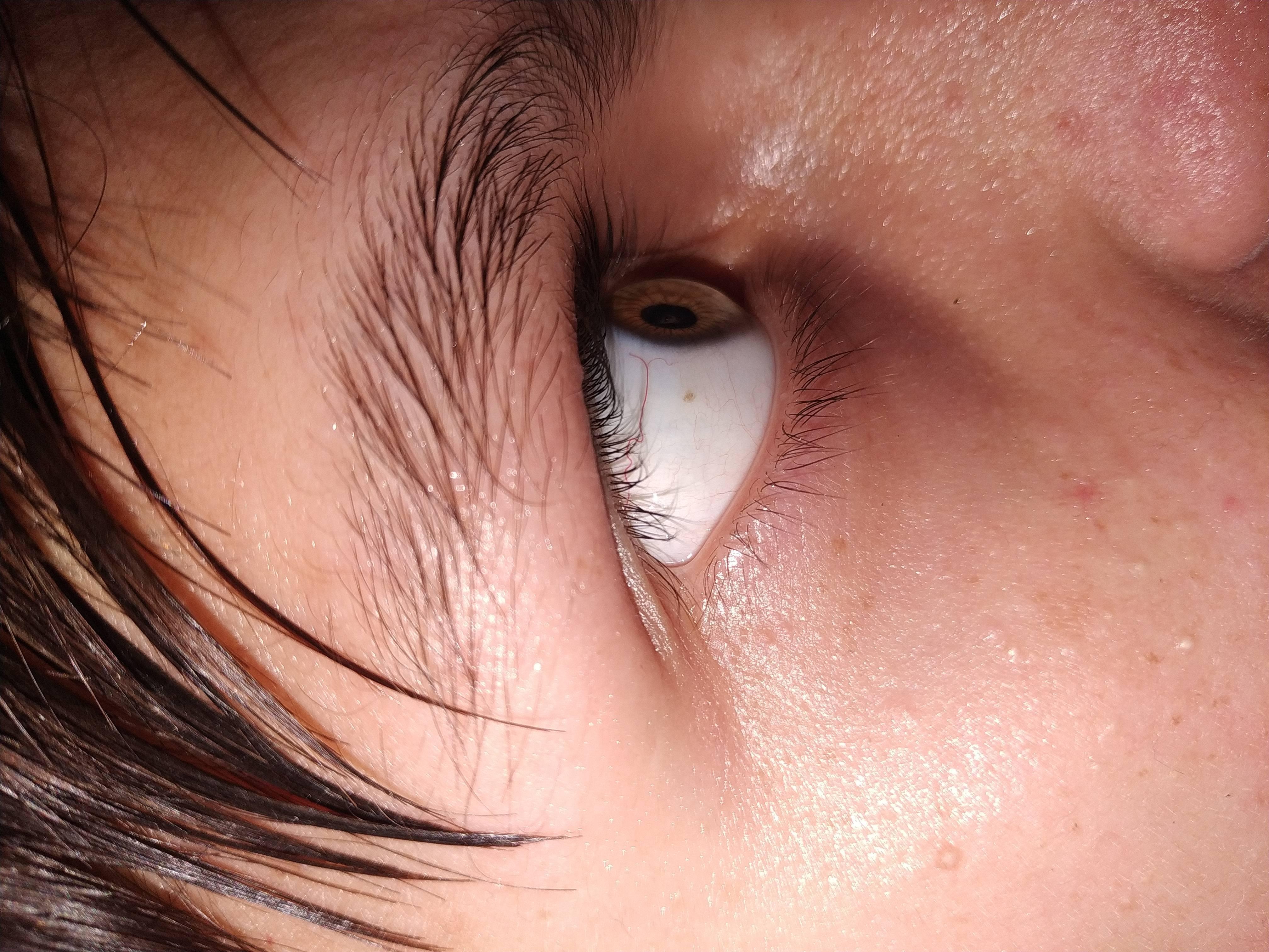 белые точки в глазах