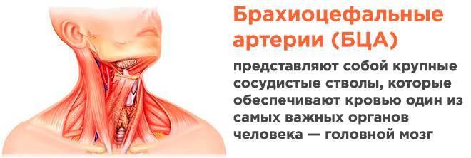 Атеросклероз бца — что это такое, причины, основные симптомы, методы диагностики и лечения