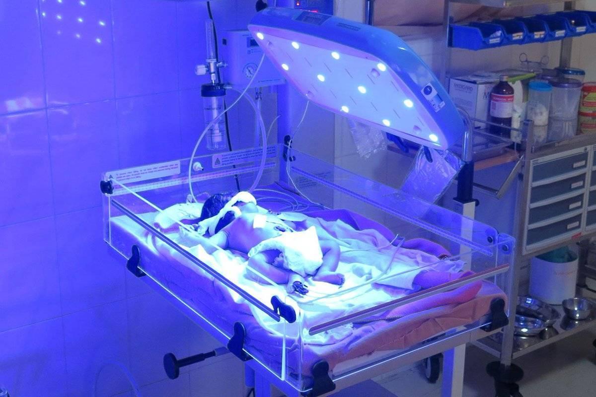 Желтуха новорожденных. диагностика, лечение, последствия и профилактика желтухи новорожденных