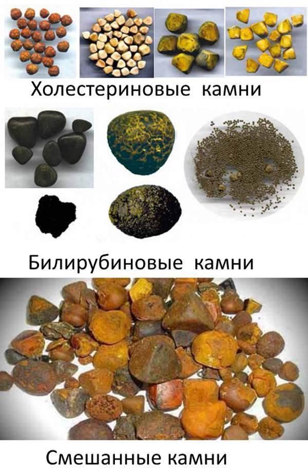 Как растворить камни в желчном пузыре - wikihow