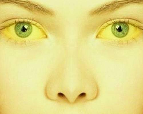 Холестатическая желтуха
