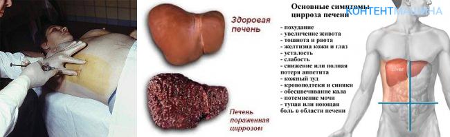 цирроз печени 1 степени