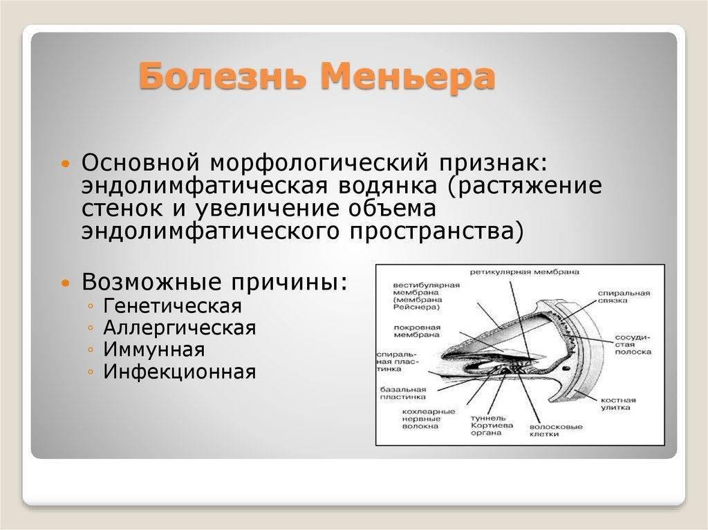 Синдром меньера: причины, симптомы, лечение