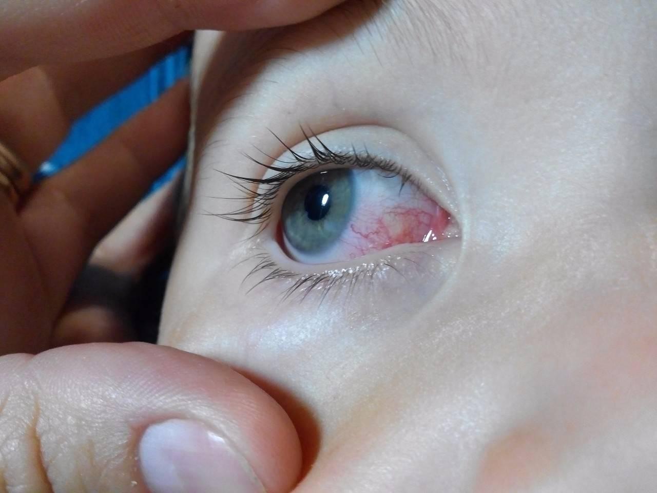 воспалились глаза у ребенка