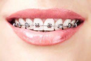 Брекеты во время беременности:  стоматология и лечение зубов у беременных мам и детей