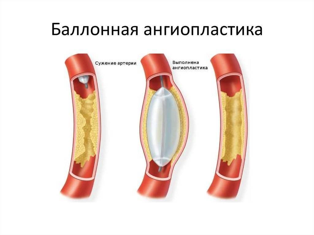 ангиопластика артерий нижних конечностей