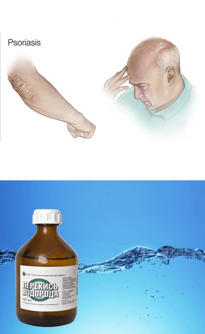 лечение псориаза перекисью водорода по неумывакину