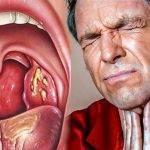 Гнойная ангина у детей и взрослых: симптомы, лечение антибиотиками, чем полоскать горло