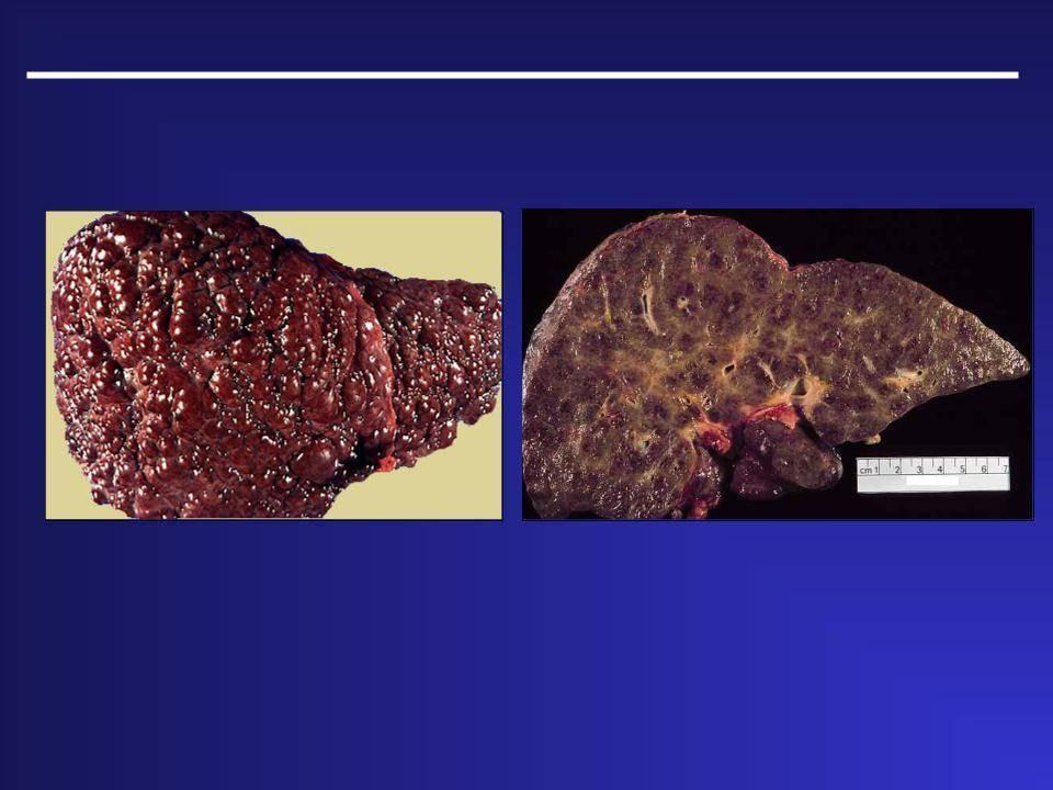 Цирроз печени заразен или нет?