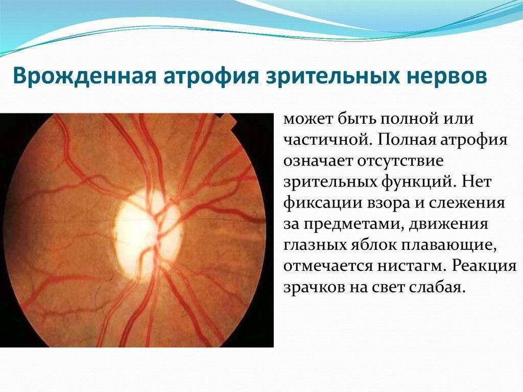 операция атрофия зрительного нерва