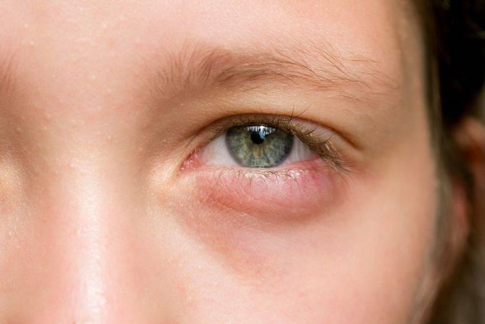 зеленые выделения из глаз