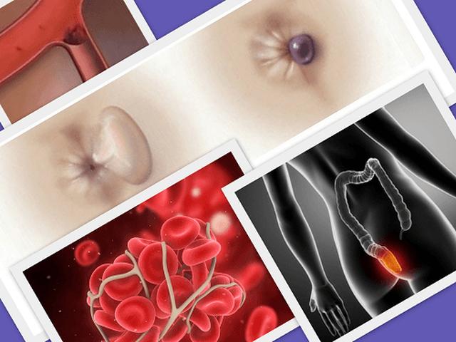 геморроидальный тромбоз как лечить