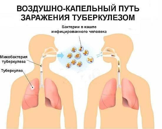 передается ли ангина через поцелуй