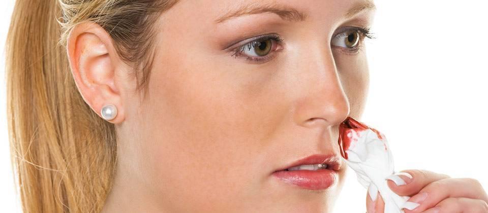 Гайморит гной идет из носа кровь