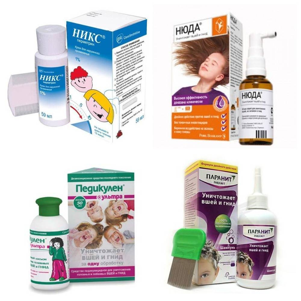 Лечение педикулеза в домашних условиях