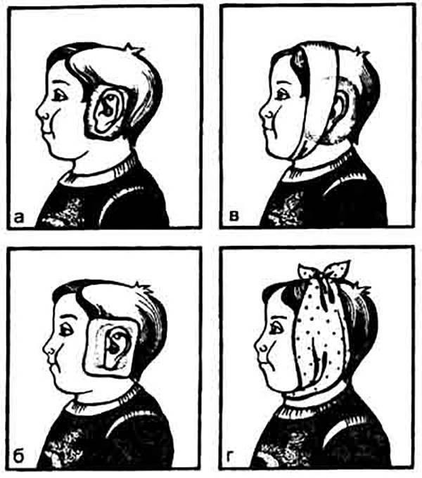Компресс на ухо при отите