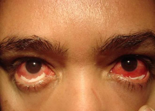 Вылечить хламидиоз глаз – спасти зрение