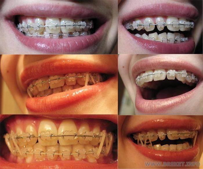 болят зубы после брекетов