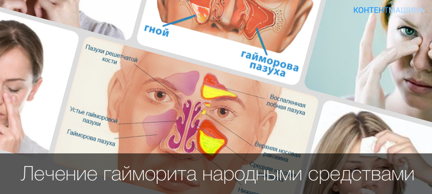 Лечение хронического гайморита у взрослых