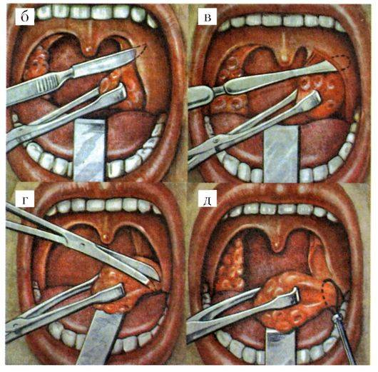 Удаление гланд: удаление миндалин за и против удаление миндалин отзывы | метки: какой, случай, удалять, гланда, нет