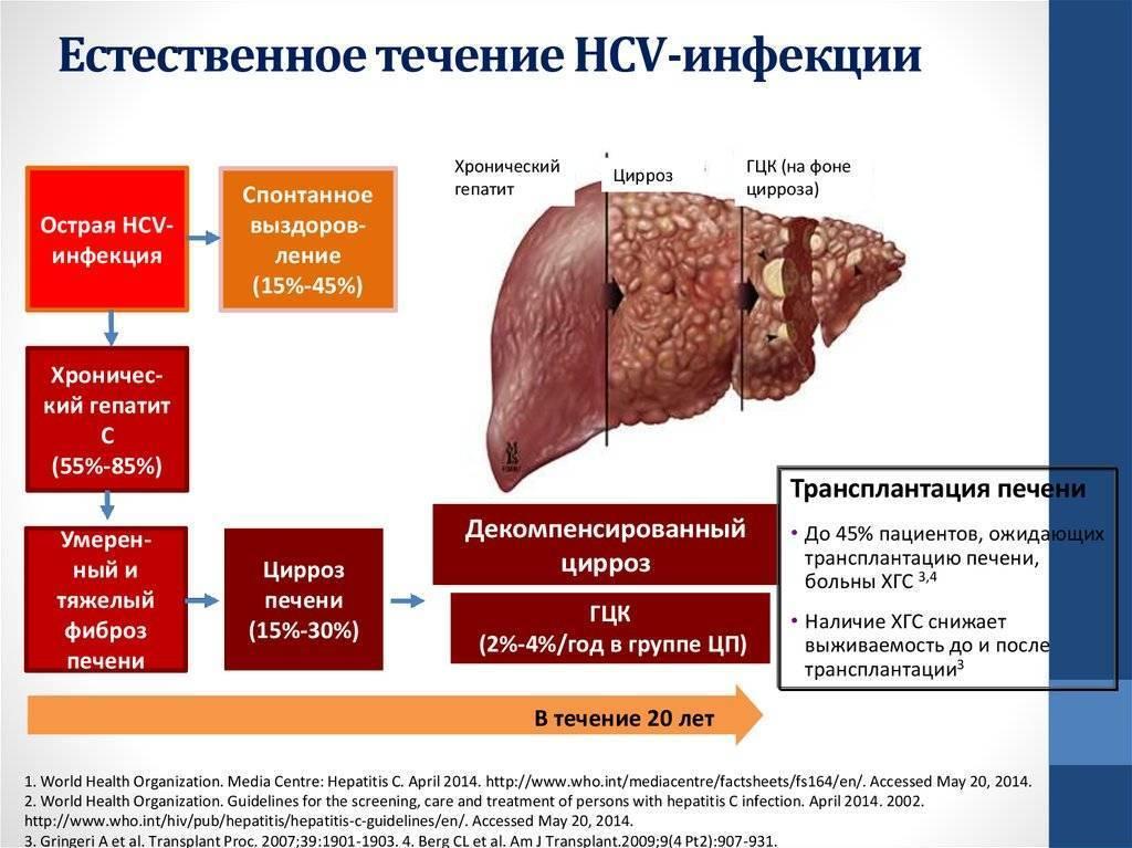 Гепатит с— первые признаки, симптомы, причины и лечение гепатита с