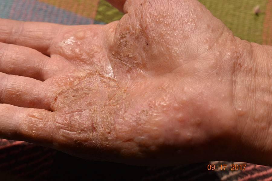 контактный дерматит причины