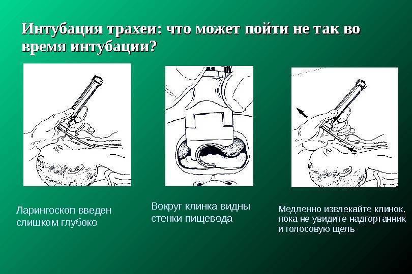 Интубация трахеи – показания, техника выполнения и возможные осложнения