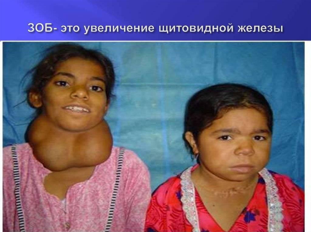 У ребенка увеличена щитовидная железа причины и лечение