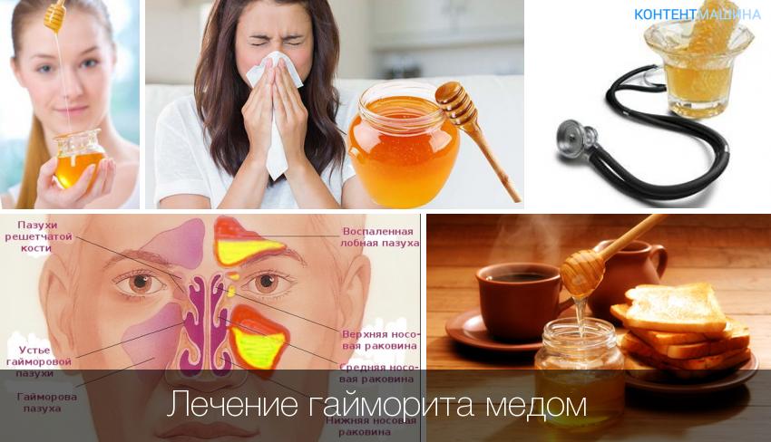 лечение гайморита медом содой и маслом