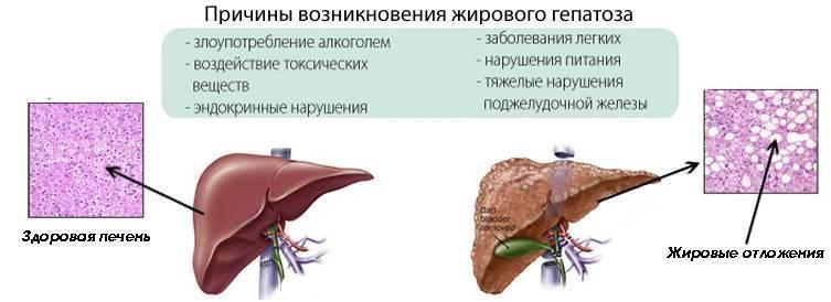 что такое гепатоз