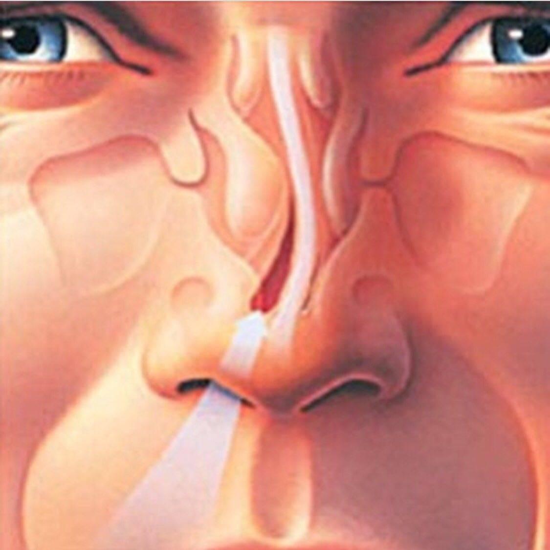 Я ненавижу свой нос: 10 лучших советов по поводу того, как исправить форму носа :: инфониак