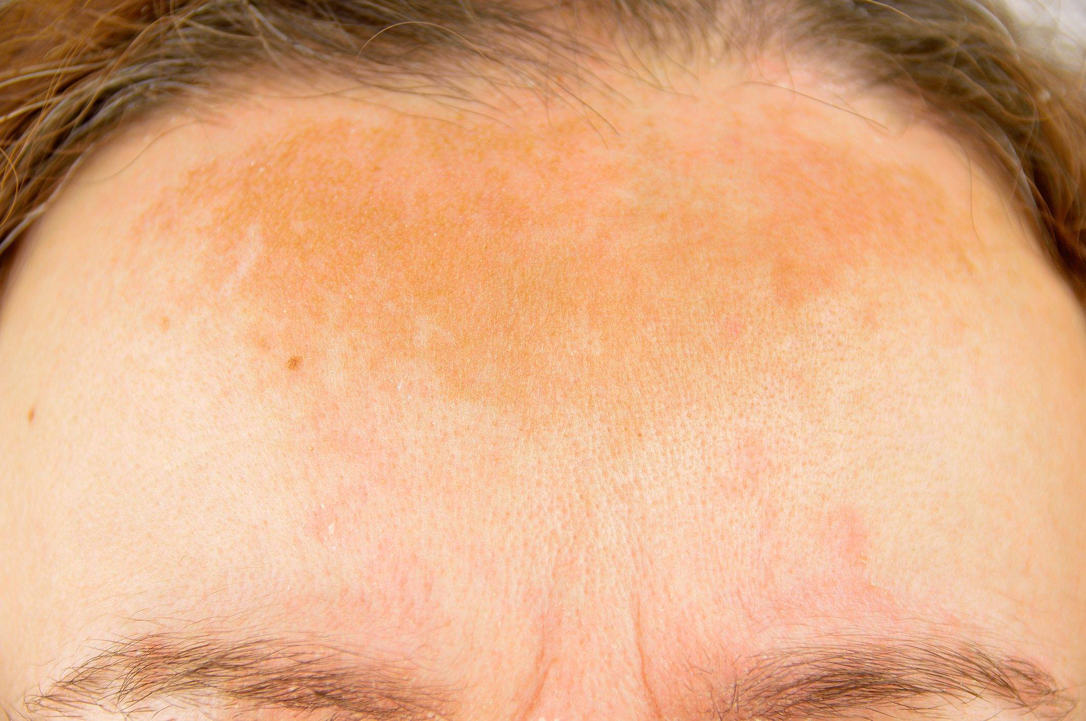 что такое солнечный дерматит
