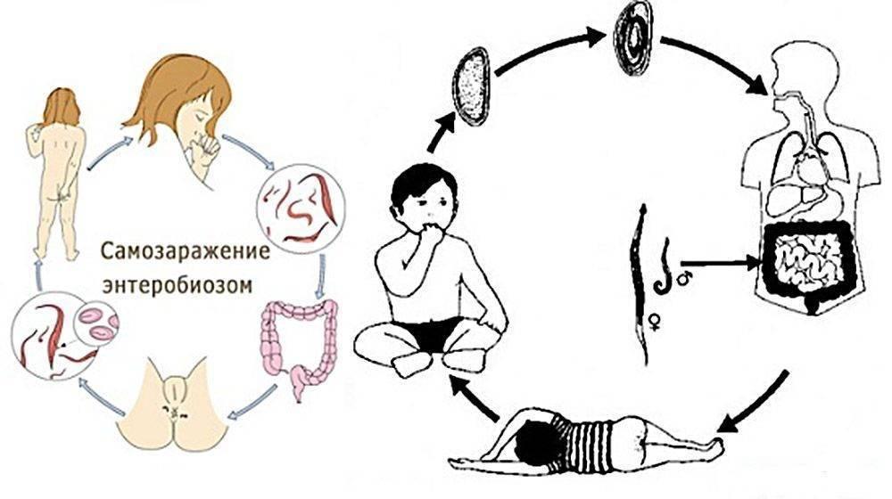 Как выглядят глисты острицы - симптомы у детей и взрослых, диагностика, лечение и профилактика