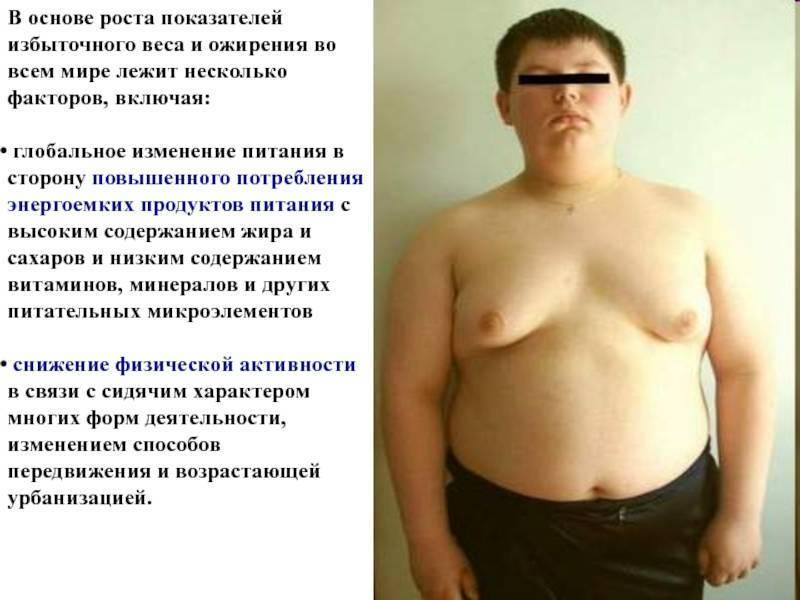 Основные причины и формы ожирения