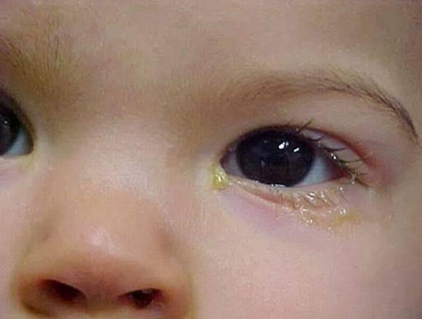 почему слезится глаз у новорожденного