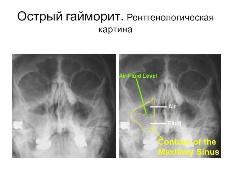 Острый синусит - симптомы, лечение