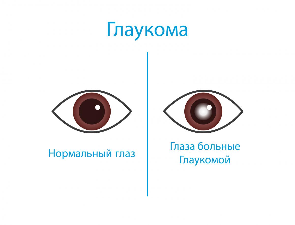 Профилактика глаукомы глаза: памятка больному